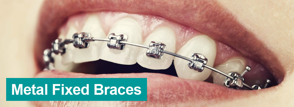 Metal Fixed Braces