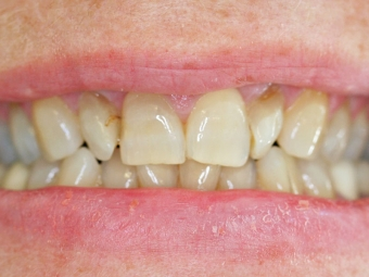 Before Dental Veneers - Case 2